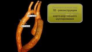КТ после операции аорто-аортального шунтирования(http://symptominfo.ru/article/doc/101/ и http://www.medglobus.ru/Medarticles-Angiology-Coarctation%20of%20aorta.htm Здесь Вы можете познакомиться с ..., 2012-09-16T15:44:22.000Z)
