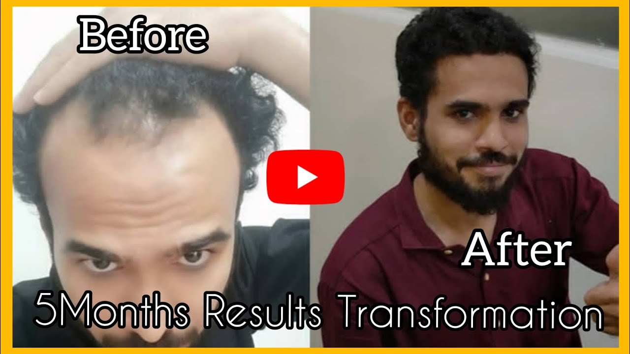 5Months Completed Results Best Transformation|Case Study4 HSN| FUE Tamil Hair transplant|Tamilan HT