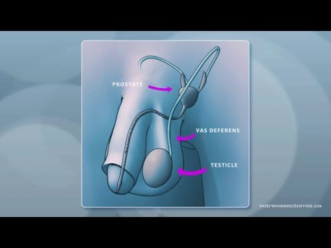 3D animation of a vasectomy