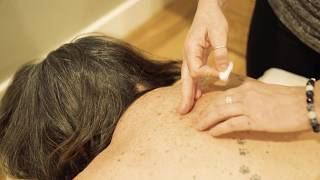 The grove wellness | acupuncture i ...