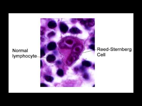 Reed-Sternberg Cells