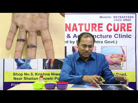 Heal Knee Pain With Naturopathy And Acupressure