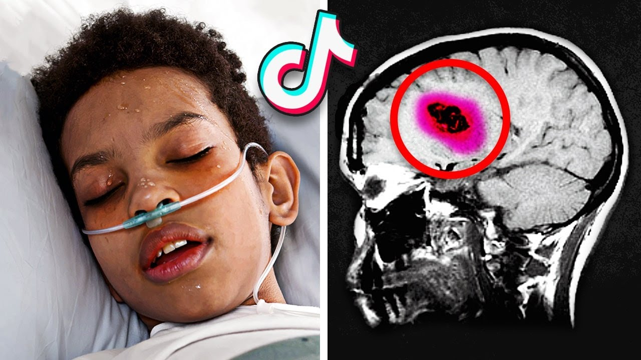 12-Year-Old Boy Is Left Brain-Dead After Trying To Become TikTok Famous