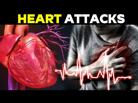 90% of heart attacks can be prevented if everyone does this | Health and Beauty