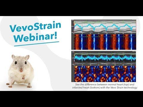 Oct 2017 VevoStrain - Understanding Subtle Cardiac Changes