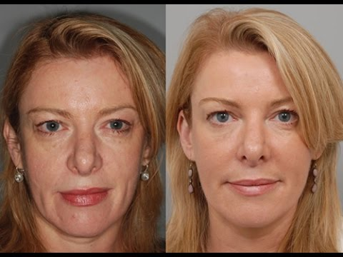 Phenol Peel Nyc 212 644 6454 Phenol Chemical Peel