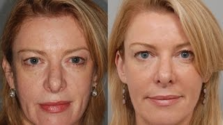 Phenol Peel NYC - (212) 644-6454 - Phenol Chemical Peel NYC - Chemical Peels NYC