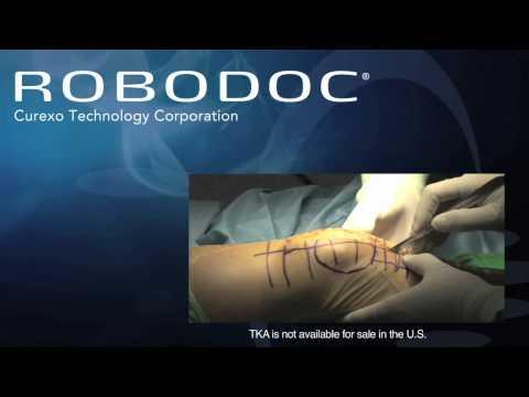 ROBODOC Video 2012