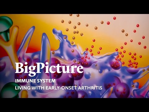 Living with early-onset arthritis | A Big Picture film