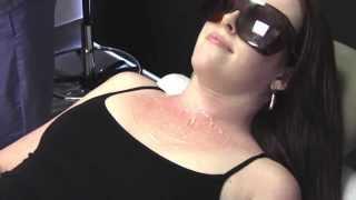 Reduce the Reds! ExcelV Laser Demonstration   Palm Desert   Palm Springs
