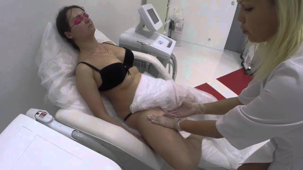 Видио эпиляции бикини