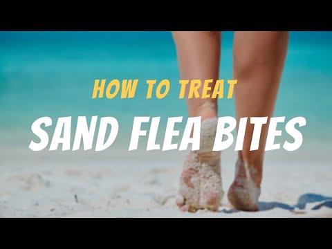 How To Treat Sand Flea Bites The Guardians Choice Youtube