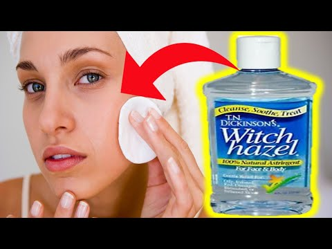 9 Incredible Witch Hazel Benefits For Skin Care