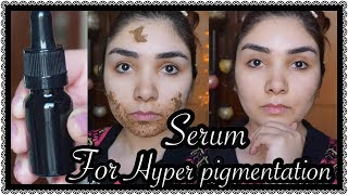 How to remove Hyperpigmentation??? Homemade SERUM 100% results    Nishoo Khan