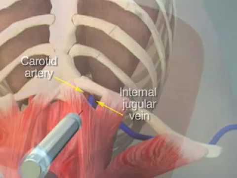 How to Place a Central Venous Catheter - NEJM tutorial