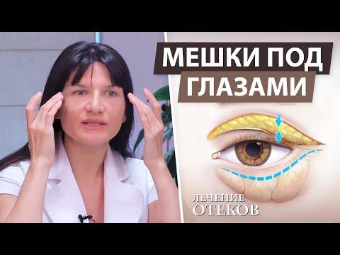 Мешки и синяки под глазами причины и лечение в домашних условиях
