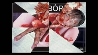 Przeciw aborcji, przeciw holokaustowi nienarodzonych dzieci/ Stop abortion!!!