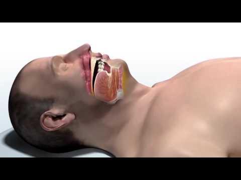 Inspire Therapy For Obstructive Sleep Apnea