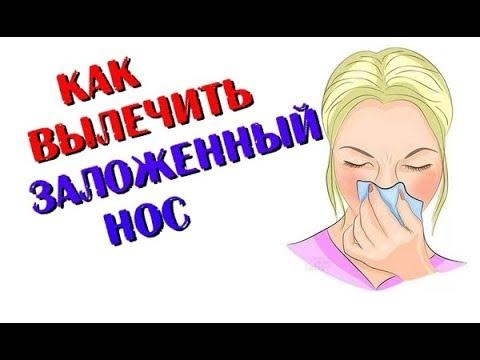 Как вылечить заложенный нос. Ринит