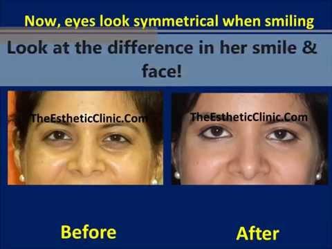 Dark Circles Under Eye Treatment in Mumbai India By Botox & Juvederm Filler Injections