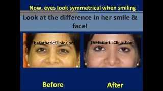Dark Circles Under Eye Treatment Mumbai India Botox Juvederm Filler Injections