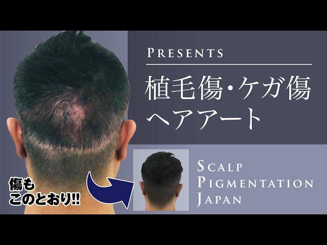 植毛傷・ケガ傷、ヘアアートでこのとおり‼︎