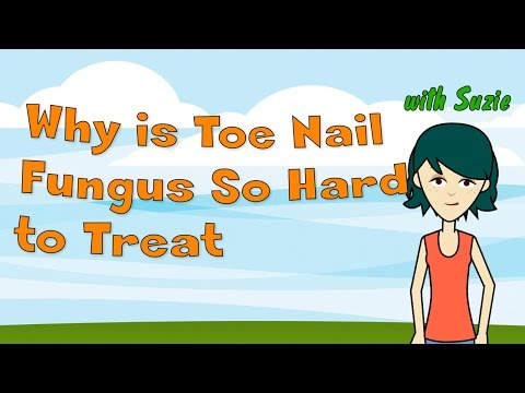 Why is Toe Nail Fungus So Hard to Treat?