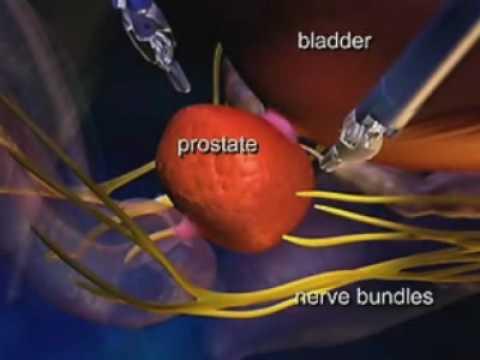 Da Vinci Robotic Prostate Cancer Surgery At Beth Israel Medical Center, New York City