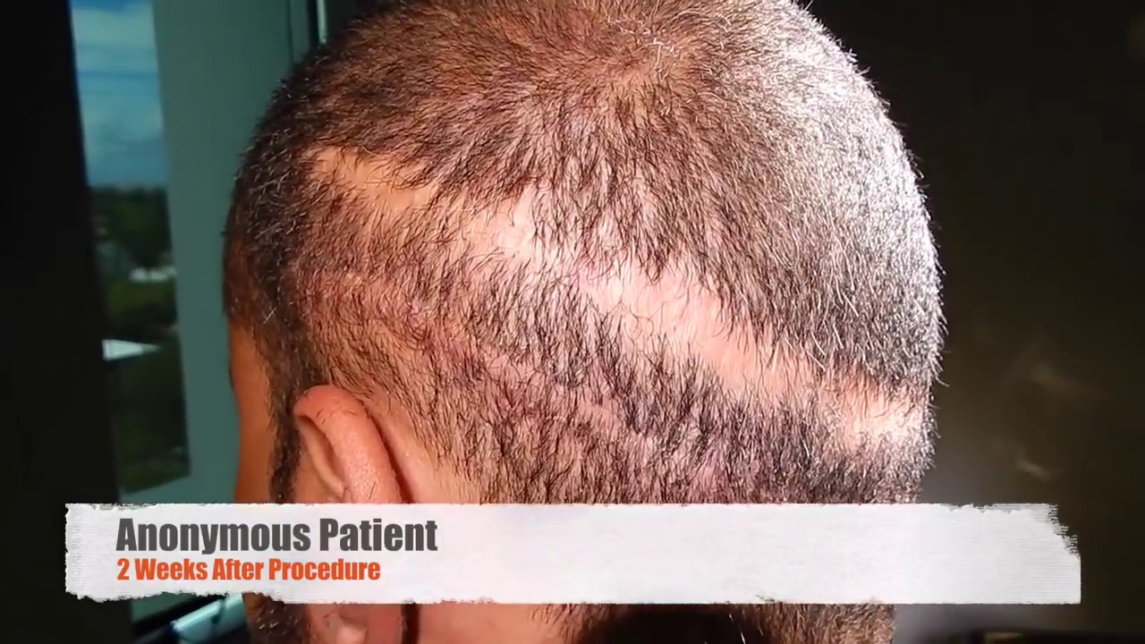 Bad Hair Transplants Hair Transplant Scar Repair Near Miami Youtube