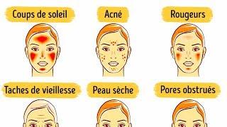 6 Masques du Visage Pour Améliorer ta Peau