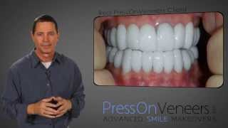 The SECRET about Veneers- No Dentist wants you to see these Prices