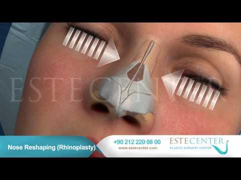 Nose Reshaping Rhinoplasty - Estecenter
