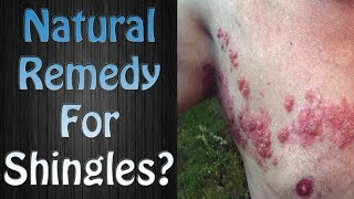 Amazing Natural Remedy for Shingles? Yes! Home Treatment for S…