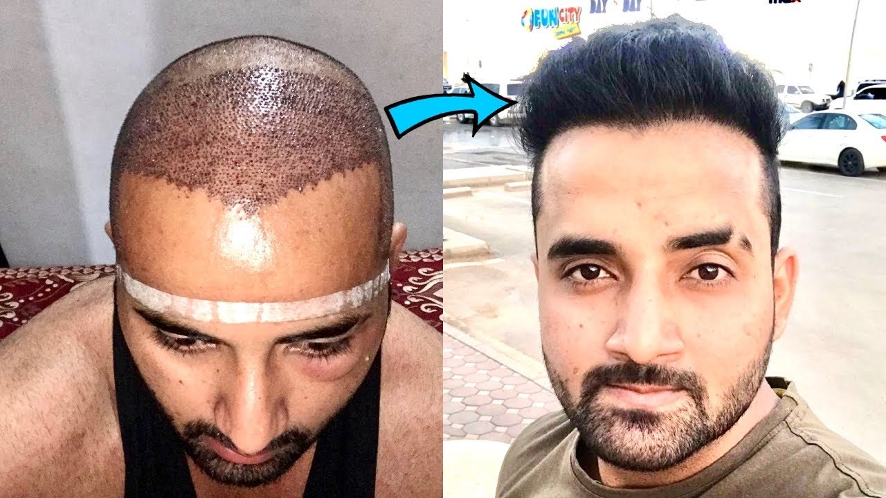 Case Study: Month by month Hair Transplant Result | FUE Hair Transplant Result in india