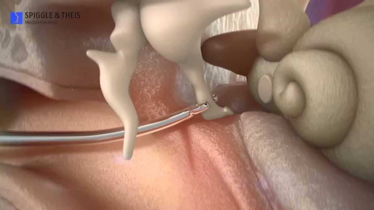 Superelastic Nitinolptfe Stapes Prosthesis Youtube