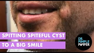 Spitting Spiteful Cyst to a Big Smile