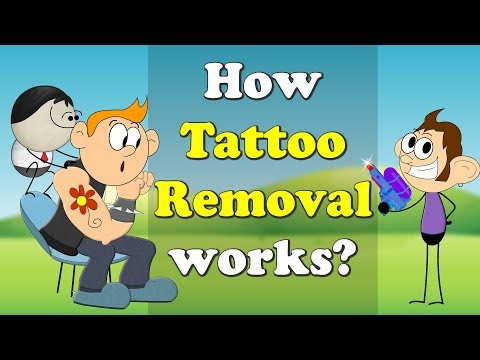 How Tattoo Removal works? | #aumsum #kids #education