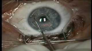 видео Операции. Страница 4