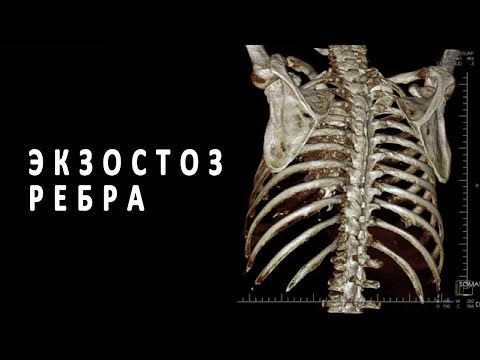Что такое экзостоз ребра?