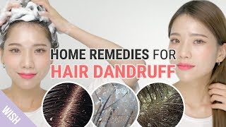 All about Hair Dandruff!   Dandruff Removal Tips   Wishtrend TV