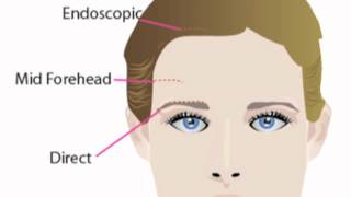 Browlift Approaches | Brow Lift Surgery
