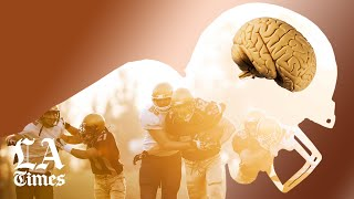 How CTE changes everything about football