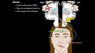 Bells Palsy and Stroke