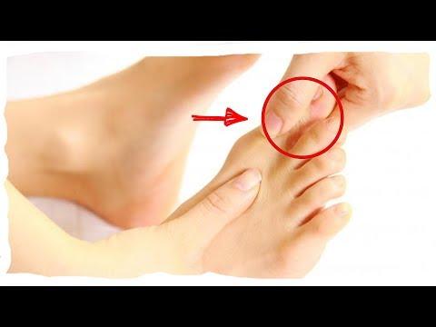 Большой палец ноги болит что делать