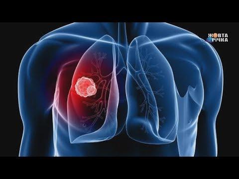 Жовта Річка: 22.03.2019 Стартував тиждень боротьби із туберкульозом. Що потрібно знати про хворобу?
