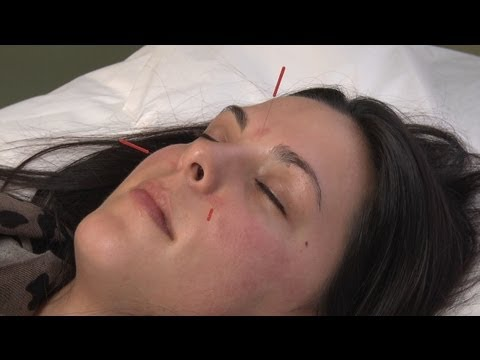 Using acupuncture to alleviate allergies