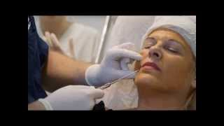 видео Аппараты для лазерной терапии, липосакции