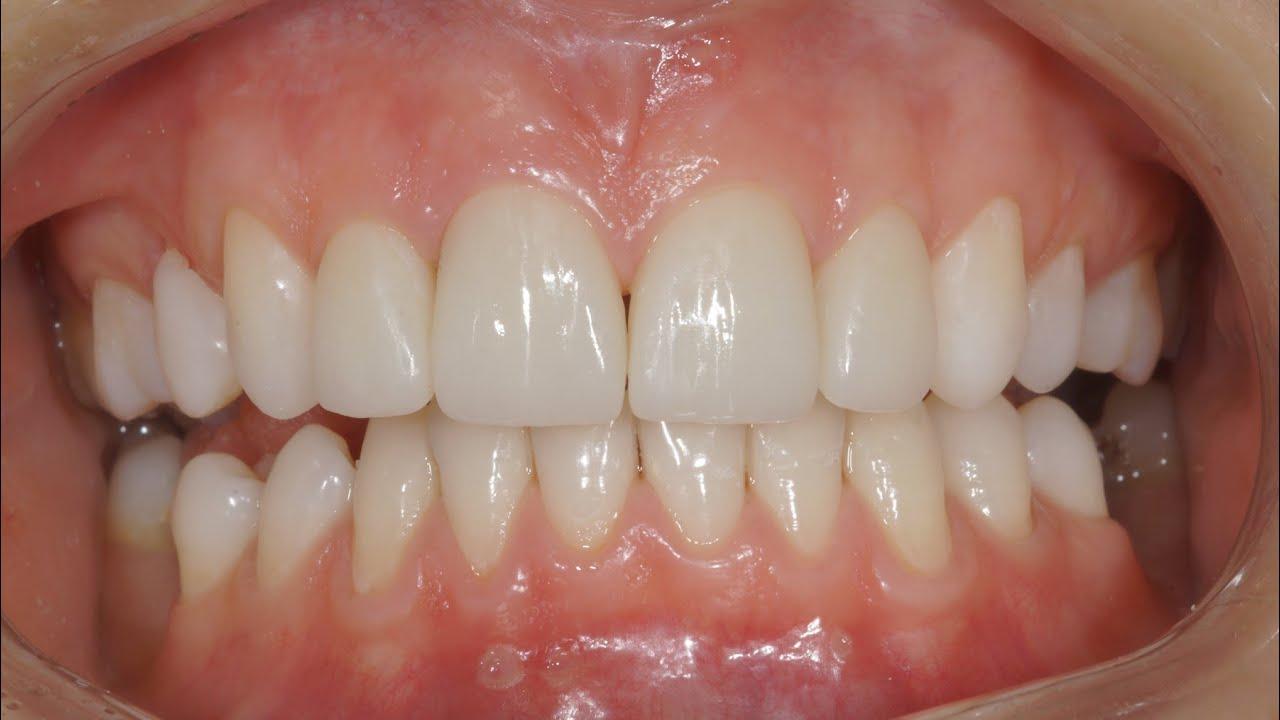 виниры без обточки зубов казань