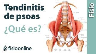 Tendinitis de psoas ilíaco o psoitis - Qué es, causas, síntomas y tratamiento