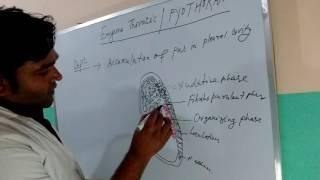Pyothorax/Empyema thoracis Lecture hand drawn